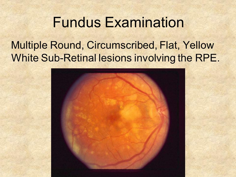 Fundus Examination Multiple Round, Circumscribed, Flat, Yellow White Sub-Retinal lesions involving the RPE.