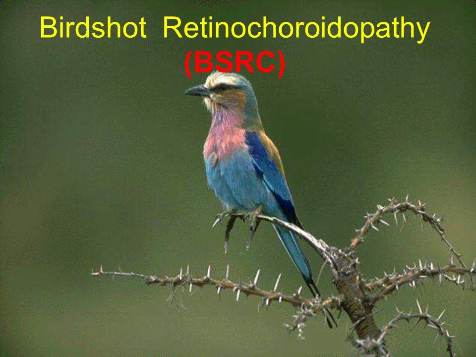 Birdshot Retinochoroidopathy (BSRC)