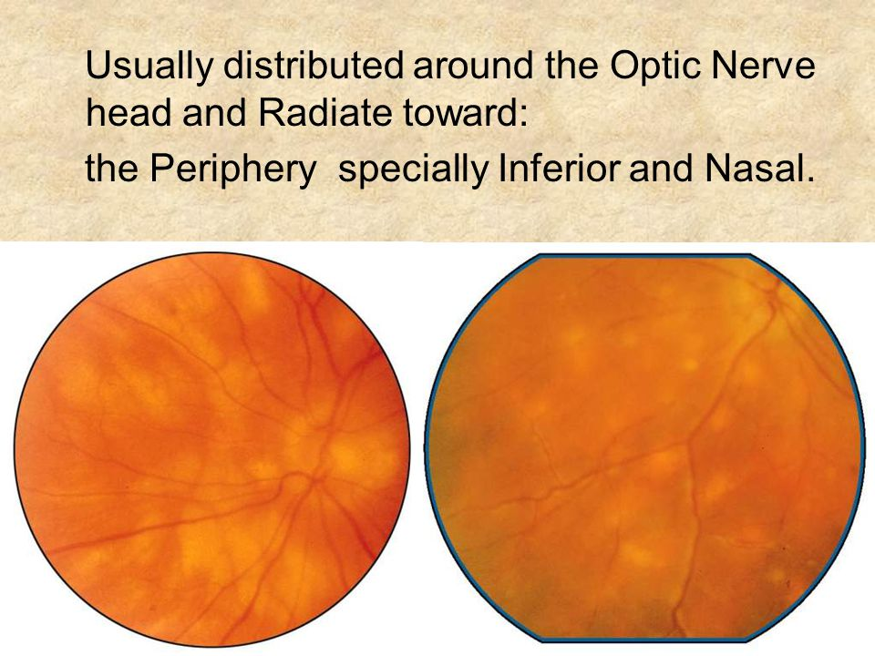 Usually distributed around the Optic Nerve head and Radiate toward: