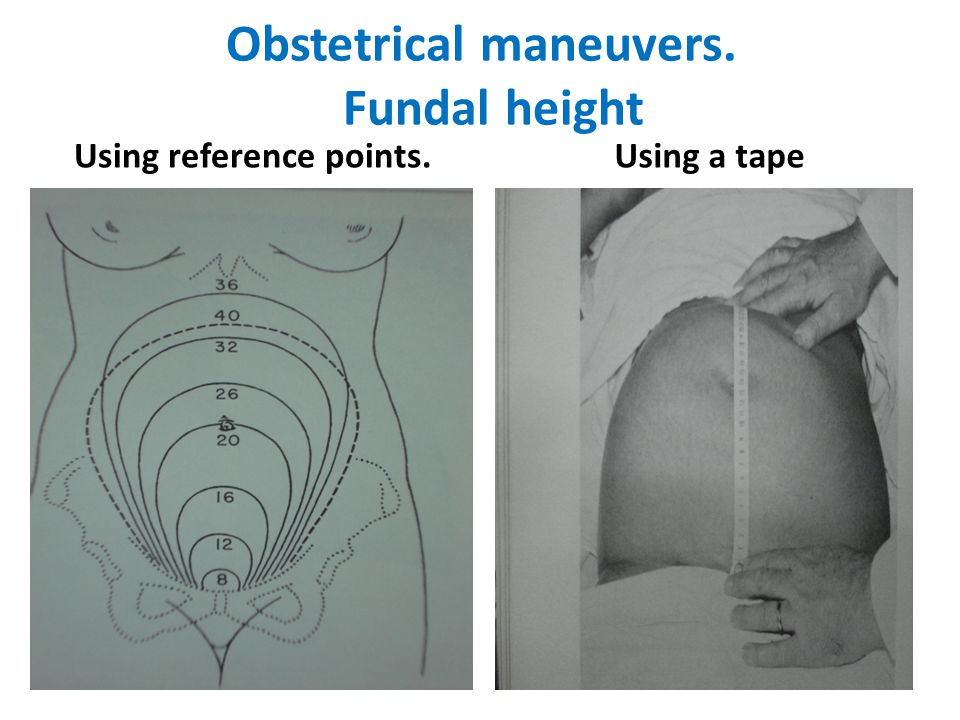 Obstetrical maneuvers. Fundal height