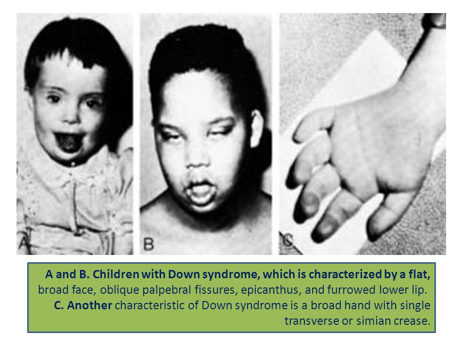 A and B. Children with Down syndrome, which is characterized by a flat,