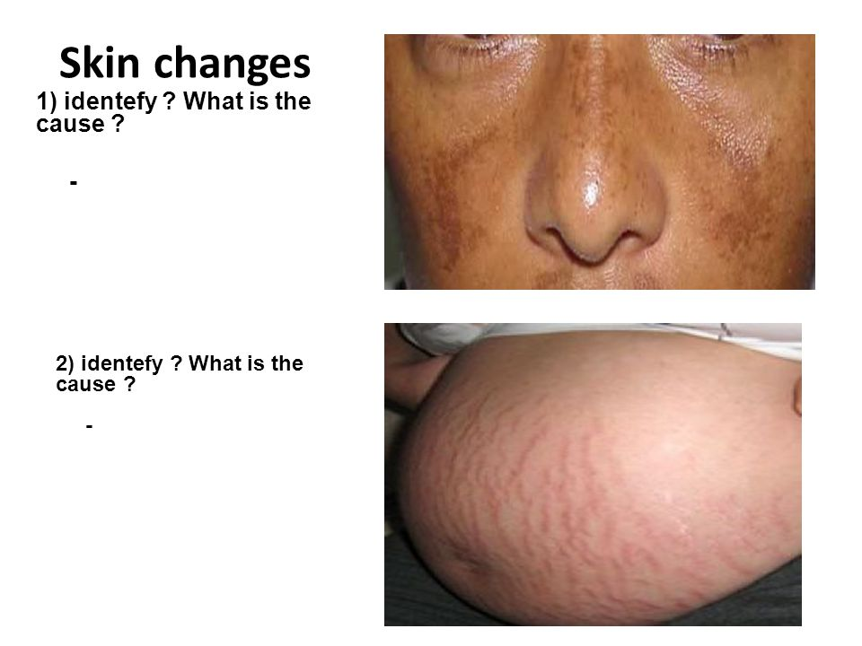 Skin changes 1) identefy What is the cause -