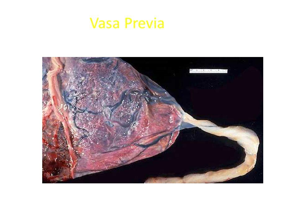 Vasa Previa Velamentous insertion of the umbilical cord