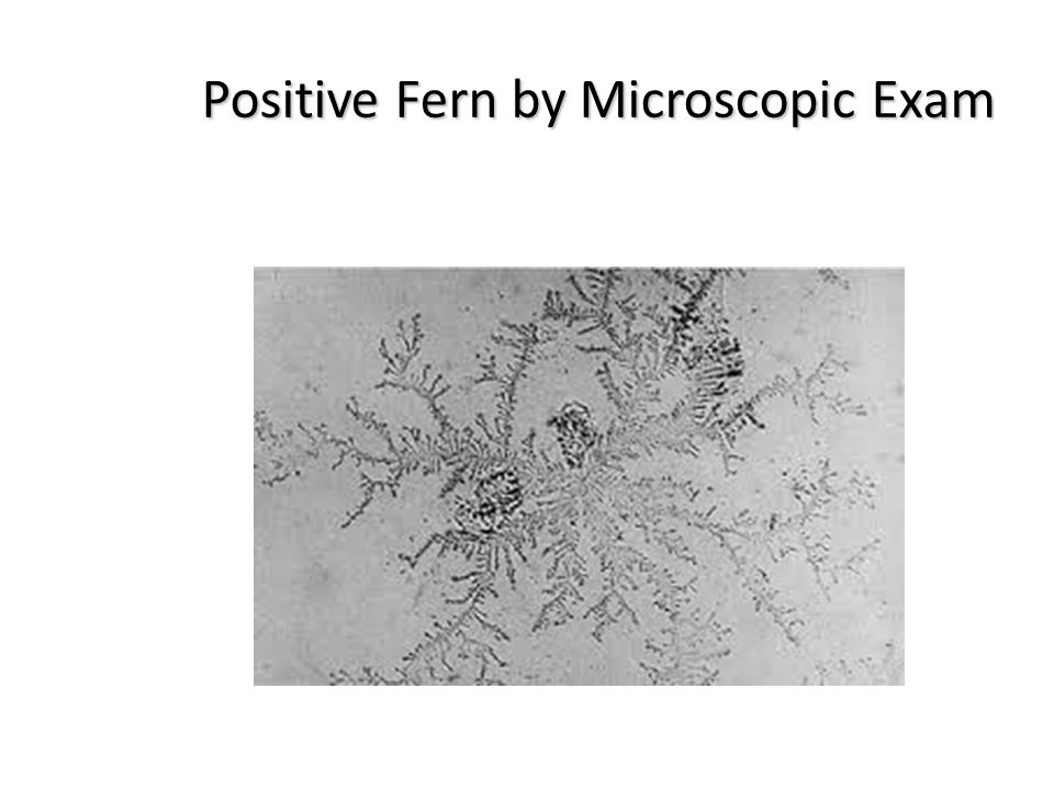 Positive Fern by Microscopic Exam