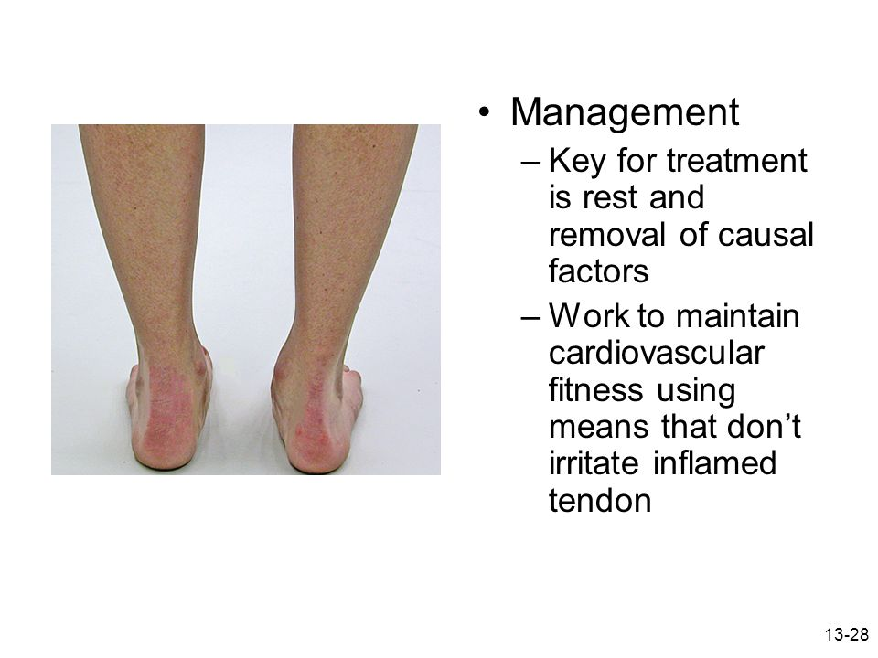 Management Key for treatment is rest and removal of causal factors