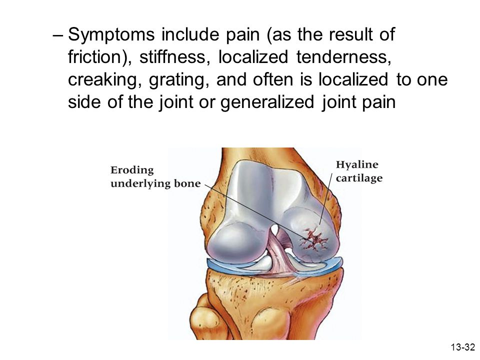 Symptoms include pain (as the result of friction), stiffness, localized tenderness, creaking, grating, and often is localized to one side of the joint or generalized joint pain