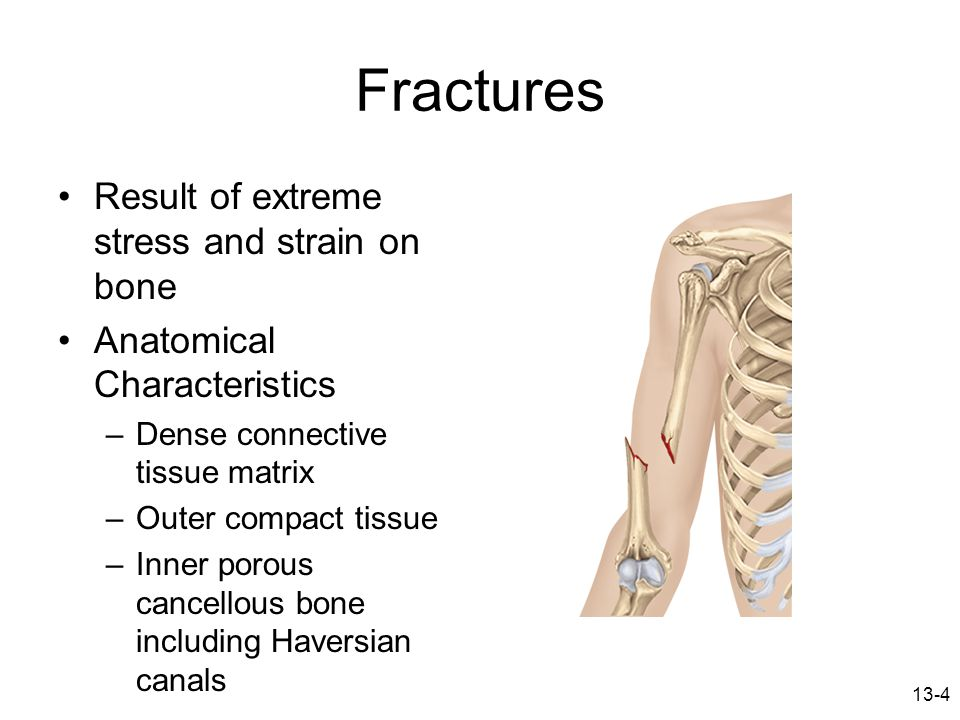 Fractures Result of extreme stress and strain on bone