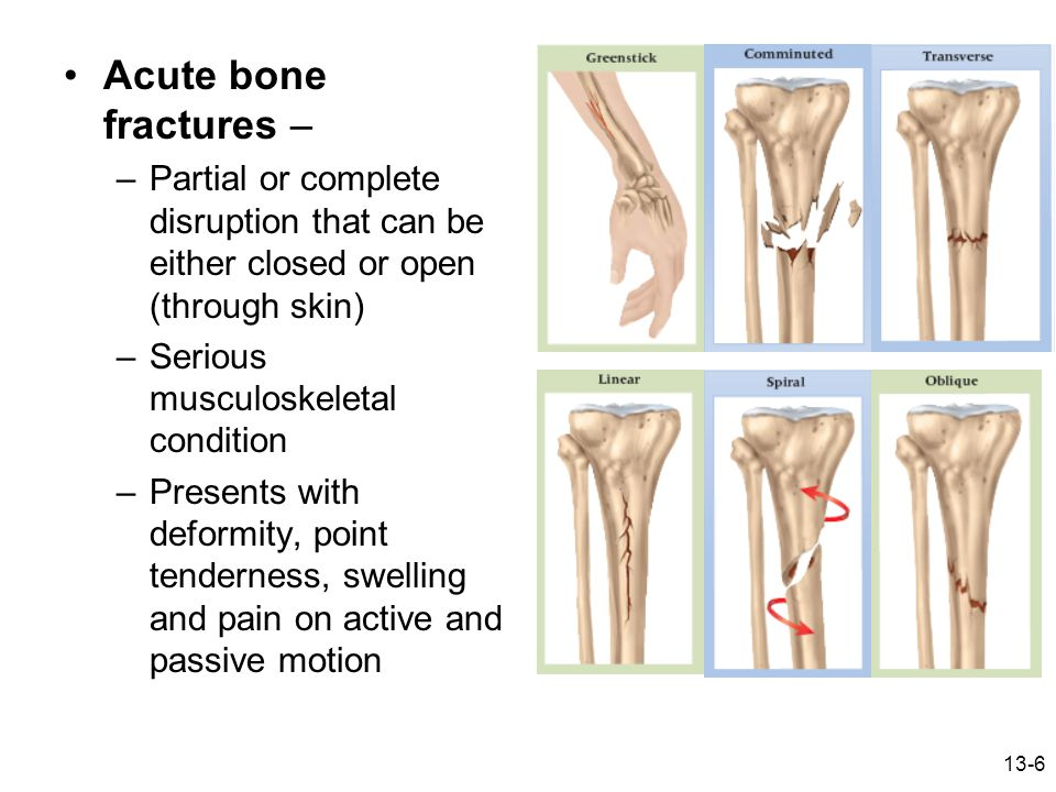 Acute bone fractures – Partial or complete disruption that can be either closed or open (through skin)