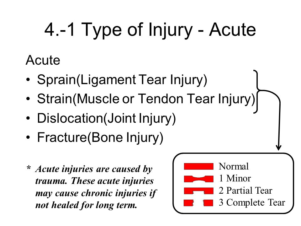 4.-1 Type of Injury - Acute Acute Sprain(Ligament Tear Injury)
