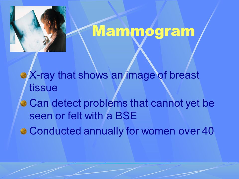 Mammogram X-ray that shows an image of breast tissue