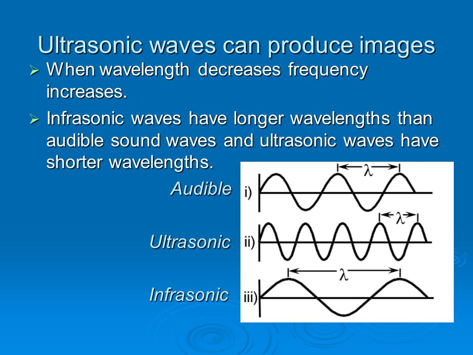 Ultrasonic waves can produce images