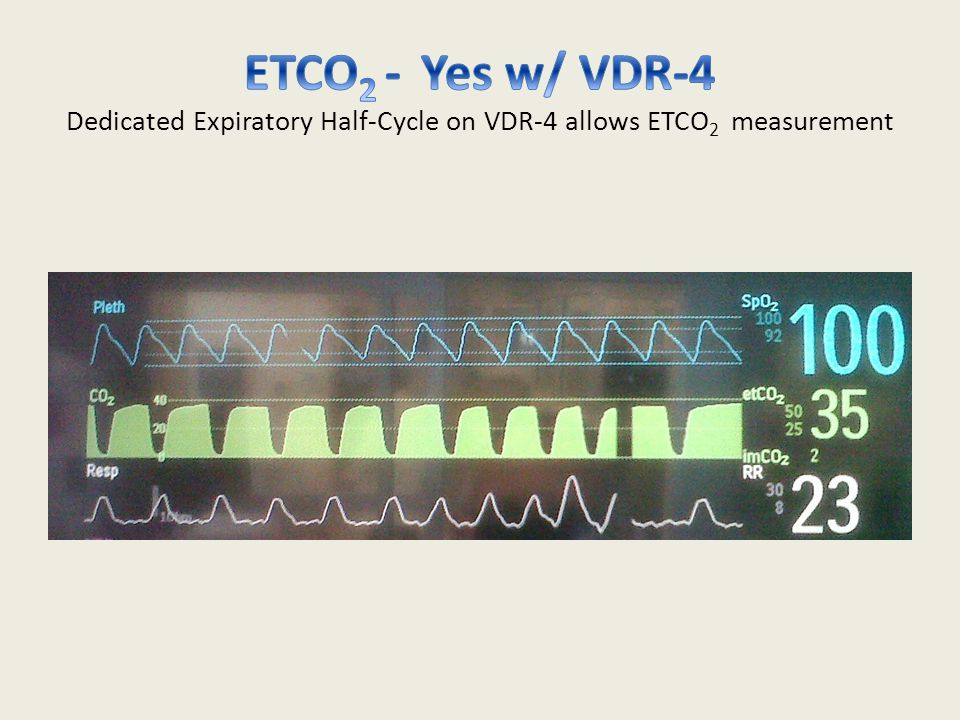 ETCO2 - Yes w/ VDR-4 Dedicated Expiratory Half-Cycle on VDR-4 allows ETCO2 measurement