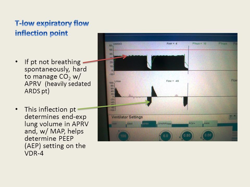 T-low expiratory flow inflection point