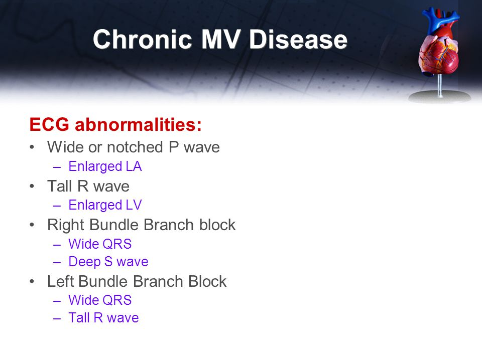 Chronic MV Disease ECG abnormalities: Wide or notched P wave