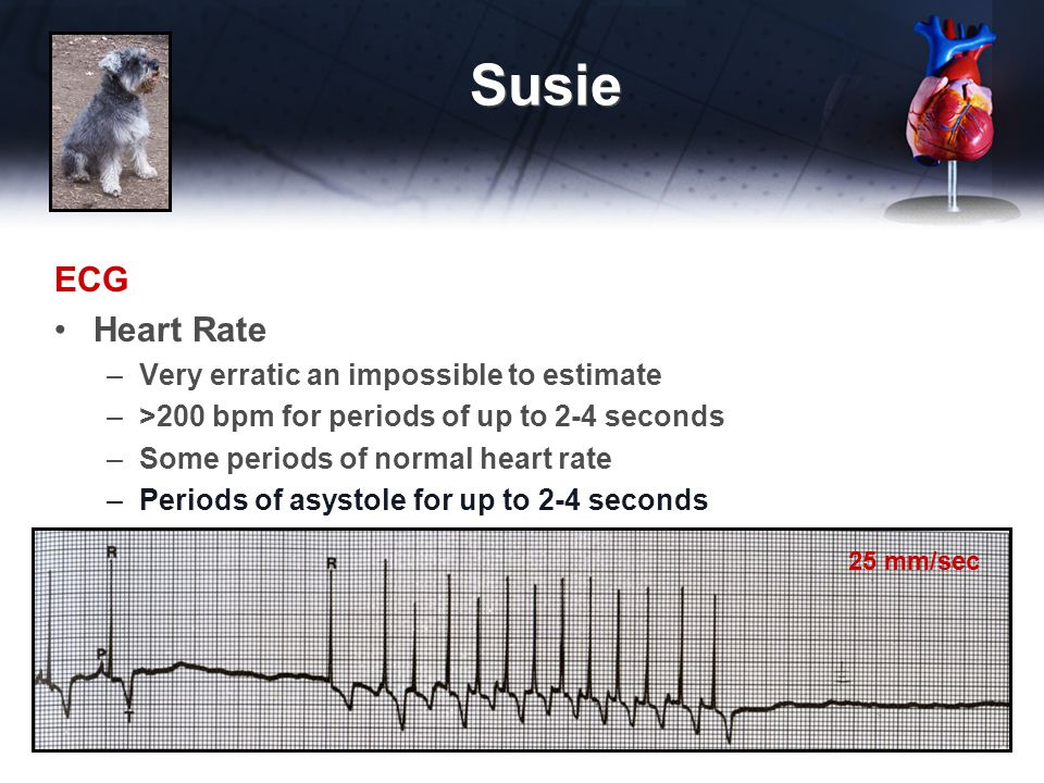 Susie ECG Heart Rate Very erratic an impossible to estimate