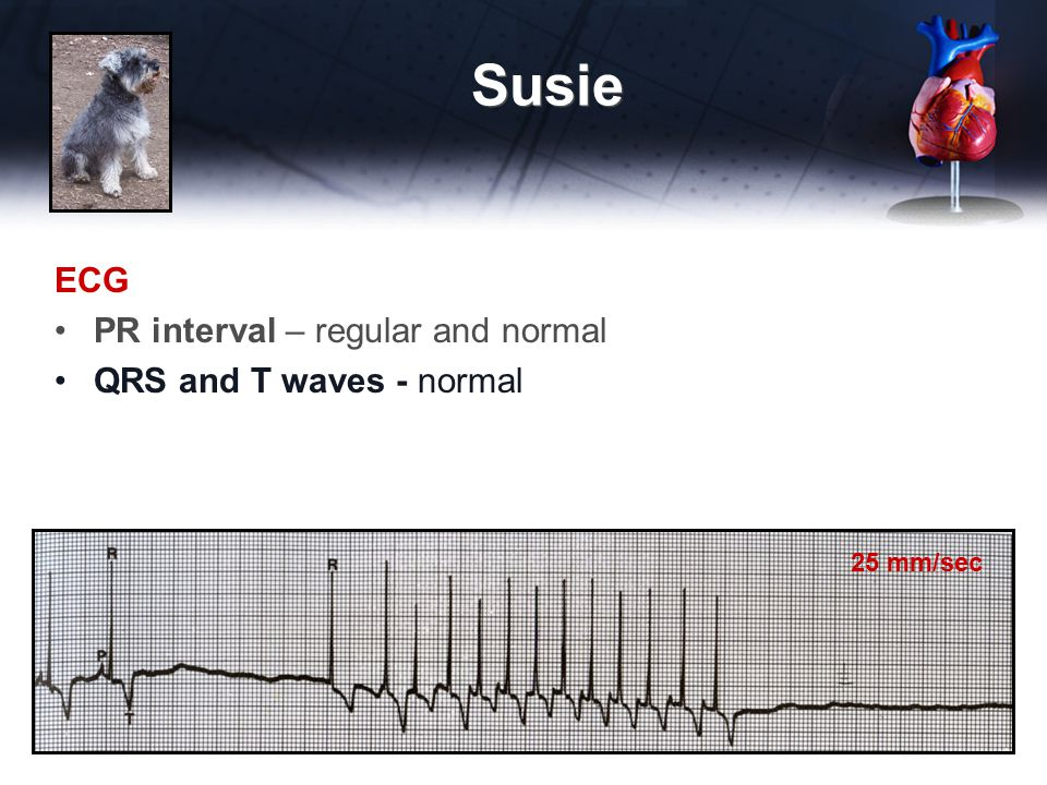 Susie ECG PR interval – regular and normal QRS and T waves - normal