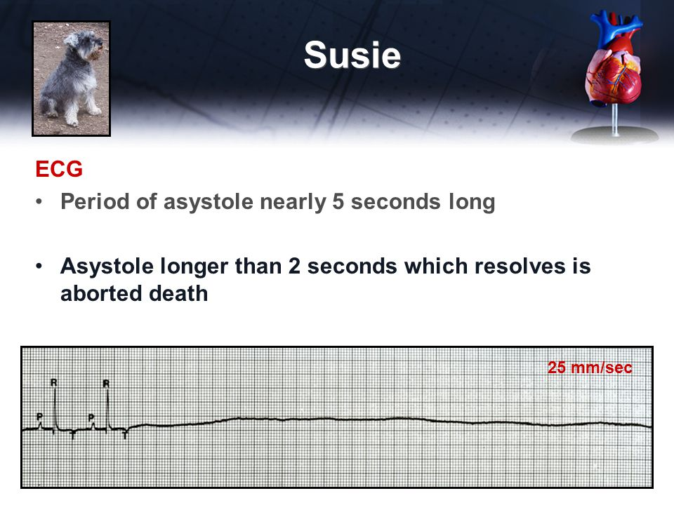 Susie ECG Period of asystole nearly 5 seconds long