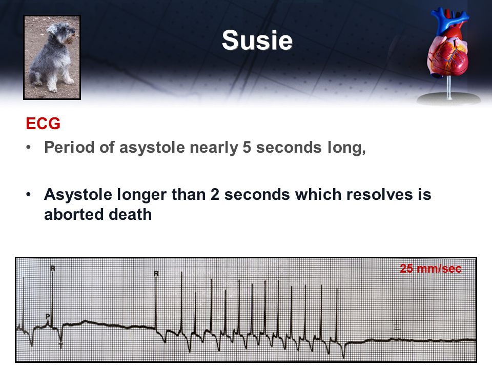 Susie ECG Period of asystole nearly 5 seconds long,