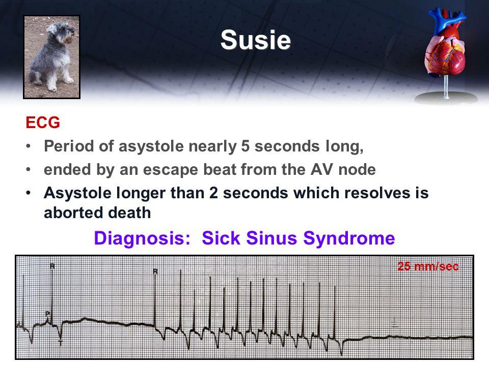 Diagnosis: Sick Sinus Syndrome