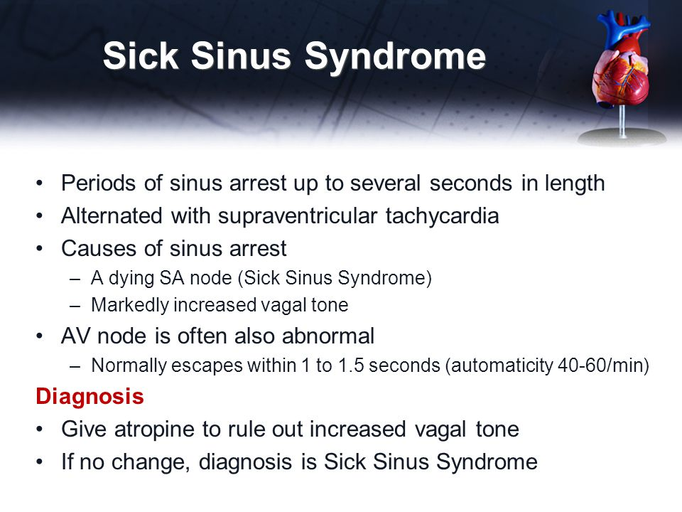 Sick Sinus Syndrome Periods of sinus arrest up to several seconds in length. Alternated with supraventricular tachycardia.