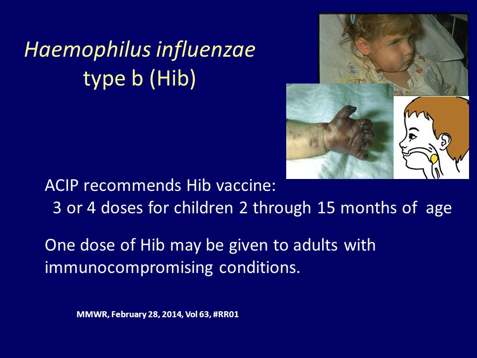 heamophilus influenza type b H influenzae meningitis is caused by haemophilus influenzae type b bacteria this illness is not the same as the flu (influenza), which is caused by a virus before the hib vaccine, h influenzae was the leading cause of bacterial meningitis in children under age 5.