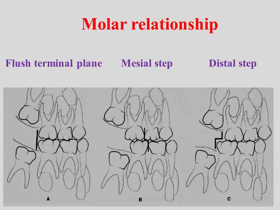 Molar relationship Flush terminal plane Mesial step Distal step