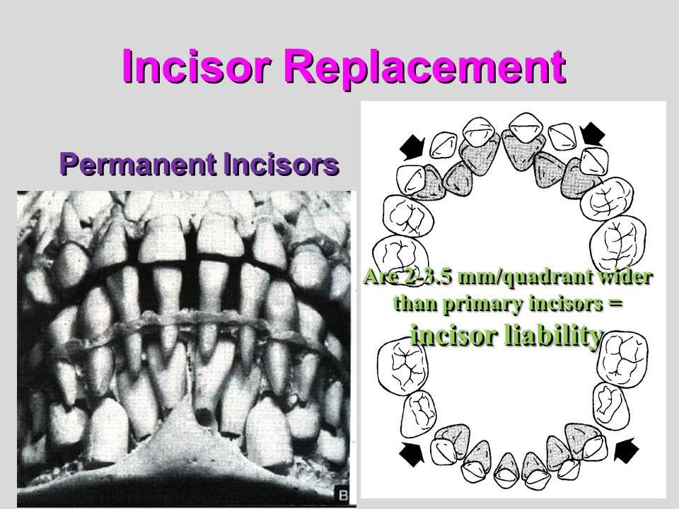 Are 2-3.5 mm/quadrant wider than primary incisors = incisor liability