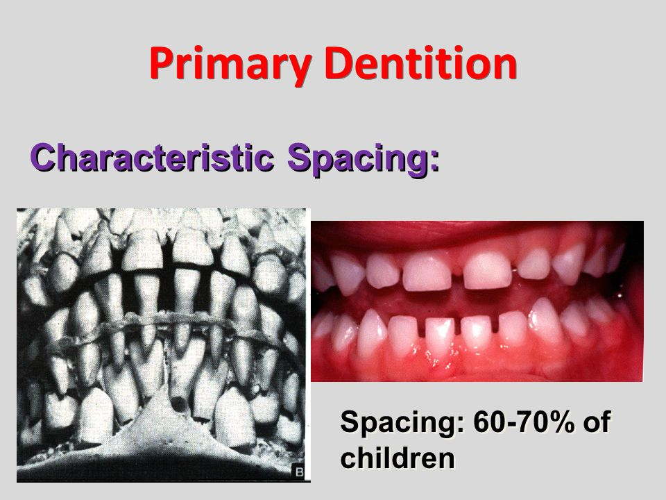 Primary Dentition Characteristic Spacing: Spacing: 60-70% of children