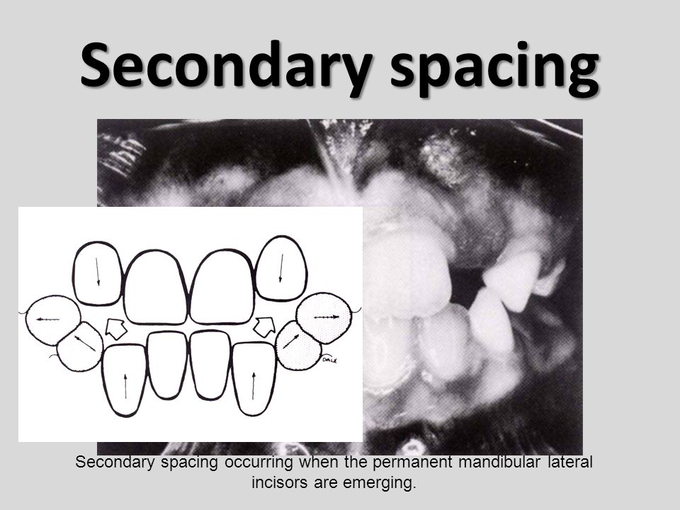 Secondary spacing Secondary spacing occurring when the permanent mandibular lateral incisors are emerging.