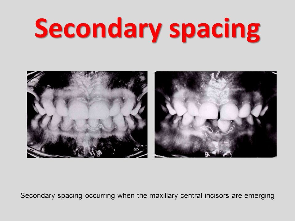 Secondary spacing Secondary spacing occurring when the maxillary central incisors are emerging