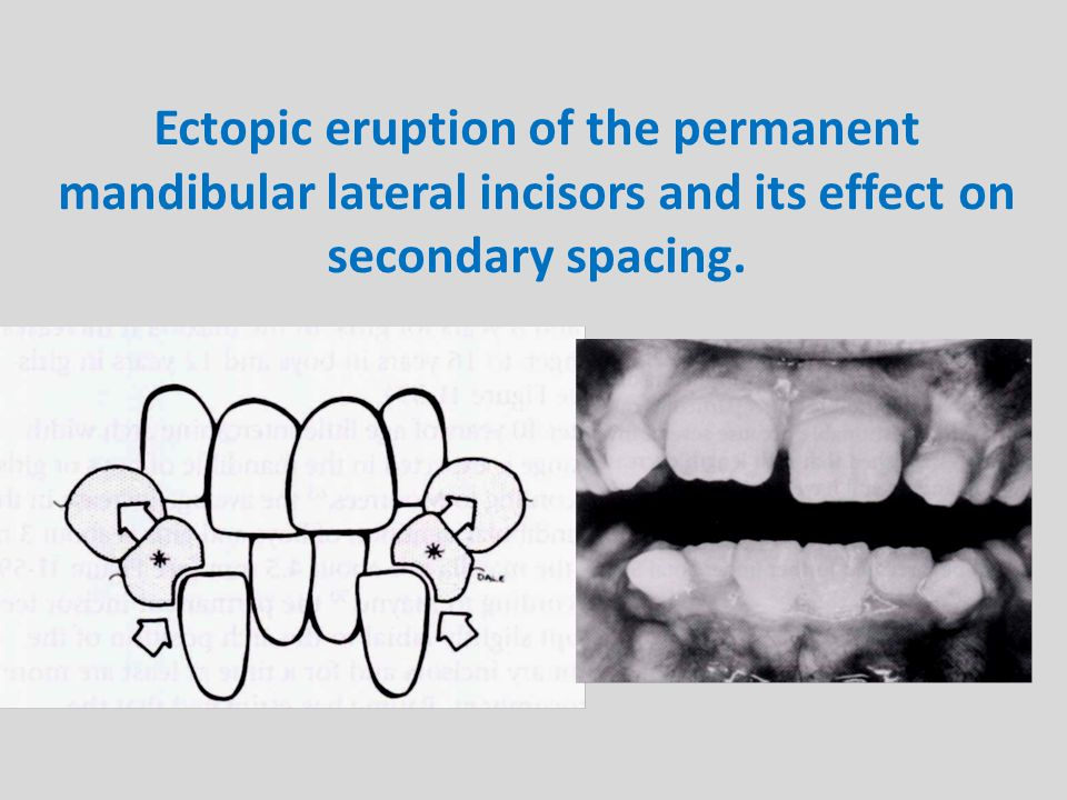 Ectopic eruption of the permanent mandibular lateral incisors and its effect on secondary spacing.
