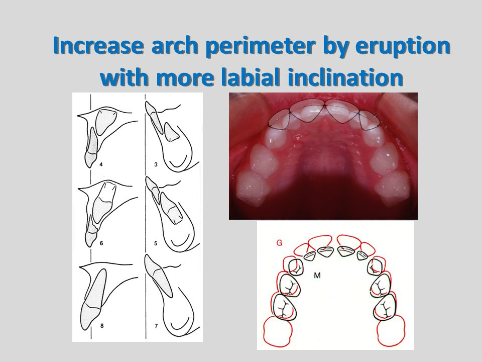 Increase arch perimeter by eruption with more labial inclination