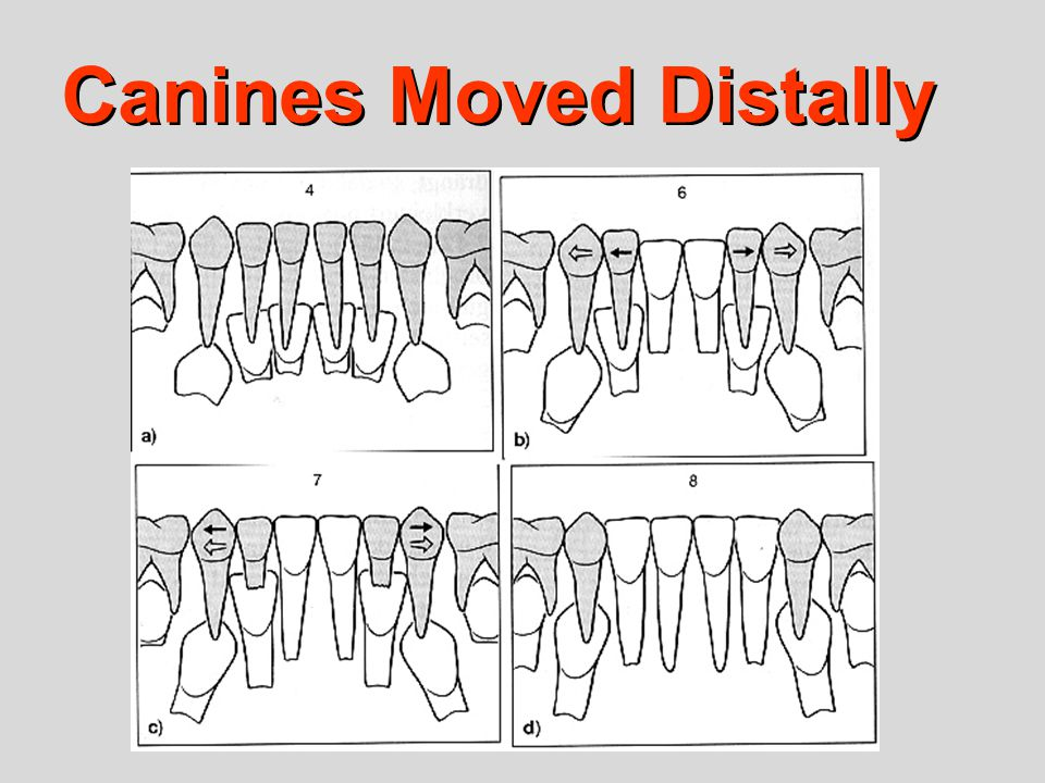 Canines Moved Distally