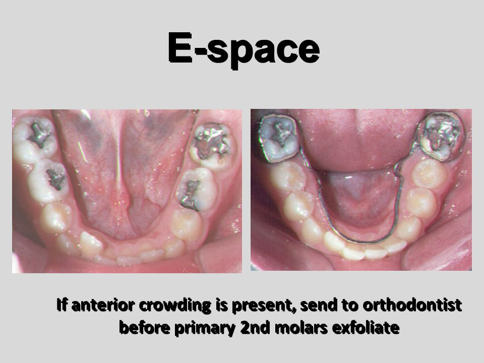 E-space If anterior crowding is present, send to orthodontist before primary 2nd molars exfoliate