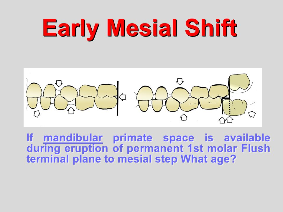 Early Mesial Shift If mandibular primate space is available during eruption of permanent 1st molar Flush terminal plane to mesial step What age