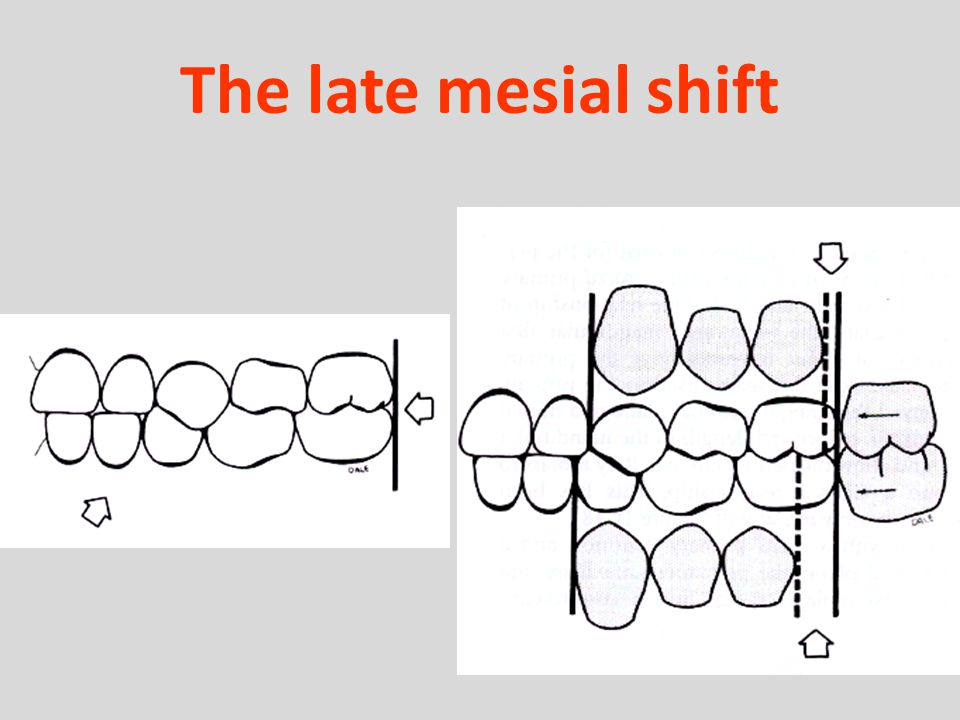 The late mesial shift