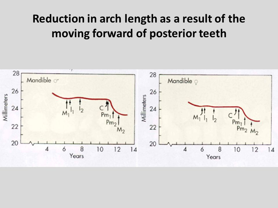 Reduction in arch length as a result of the moving forward of posterior teeth