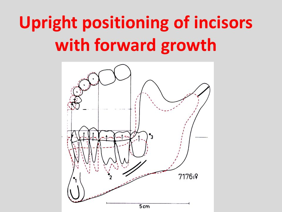 Upright positioning of incisors with forward growth