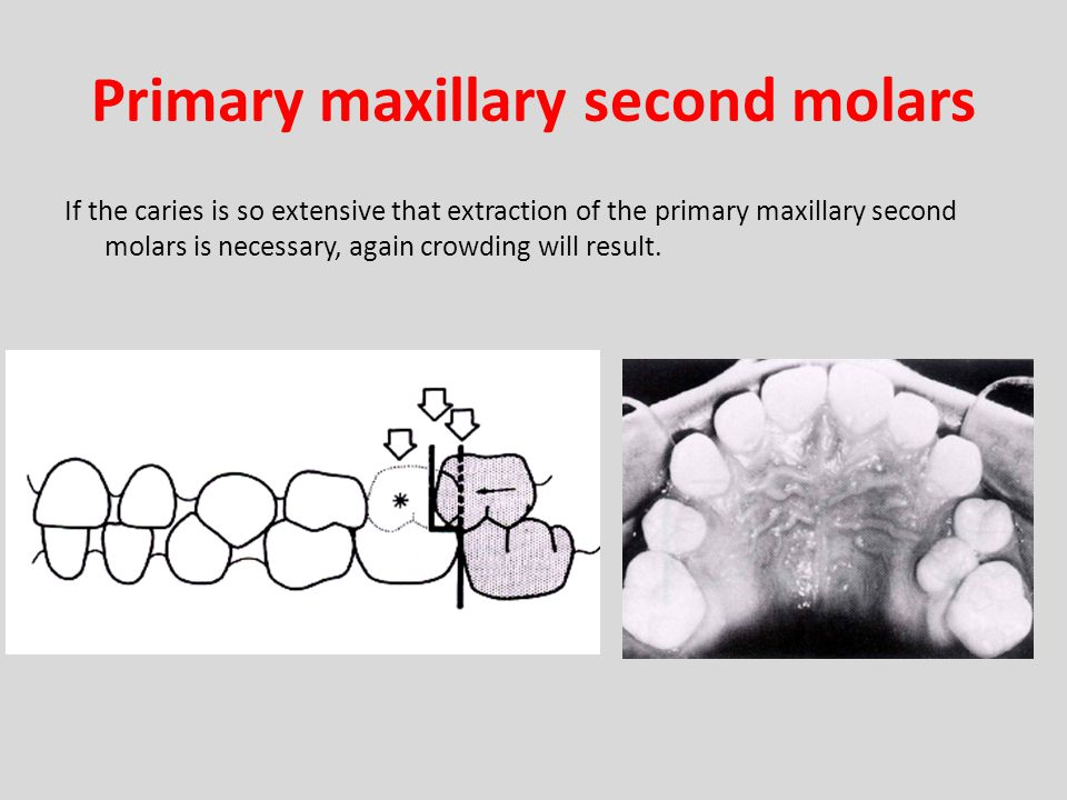 Primary maxillary second molars