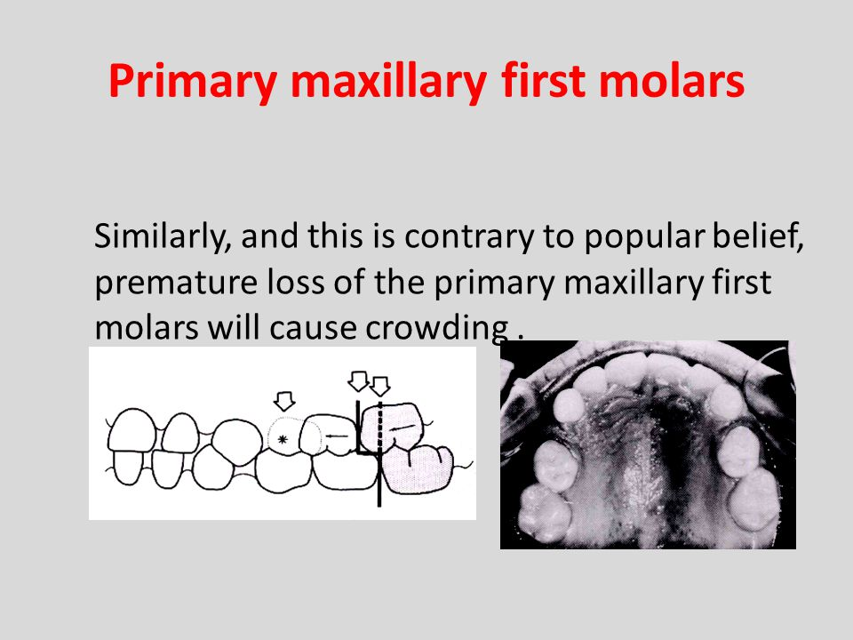 Primary maxillary first molars