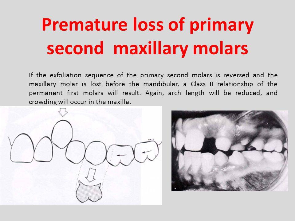 Premature loss of primary second maxillary molars