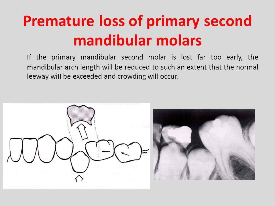 Premature loss of primary second mandibular molars