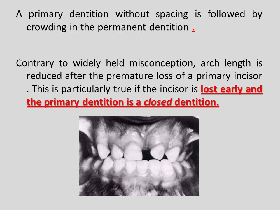 A primary dentition without spacing is followed by crowding in the permanent dentition .