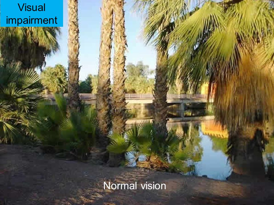 Visual impairment Normal vision 25