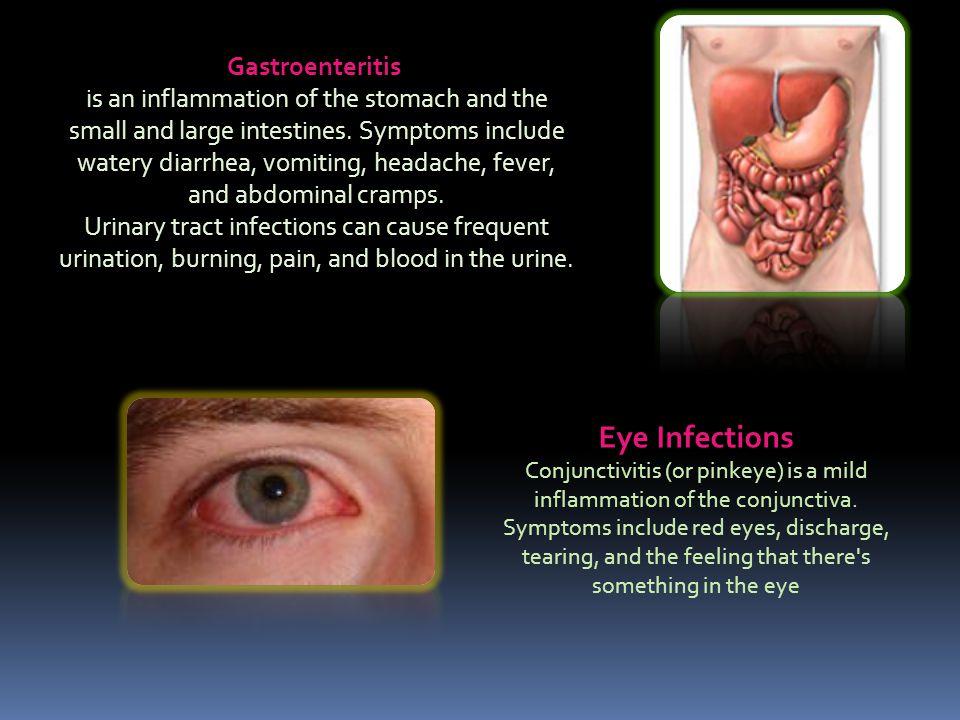 Eye Infections Gastroenteritis