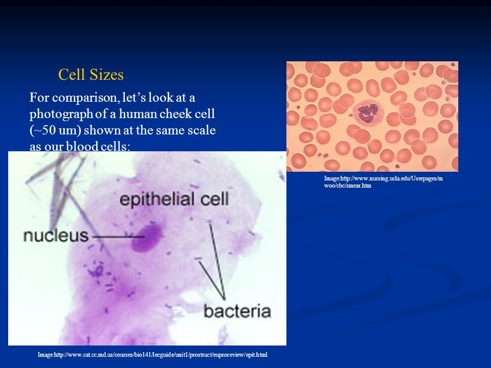 Cell Sizes For comparison, let's look at a photograph of a human cheek cell (~50 um) shown at the same scale as our blood cells: