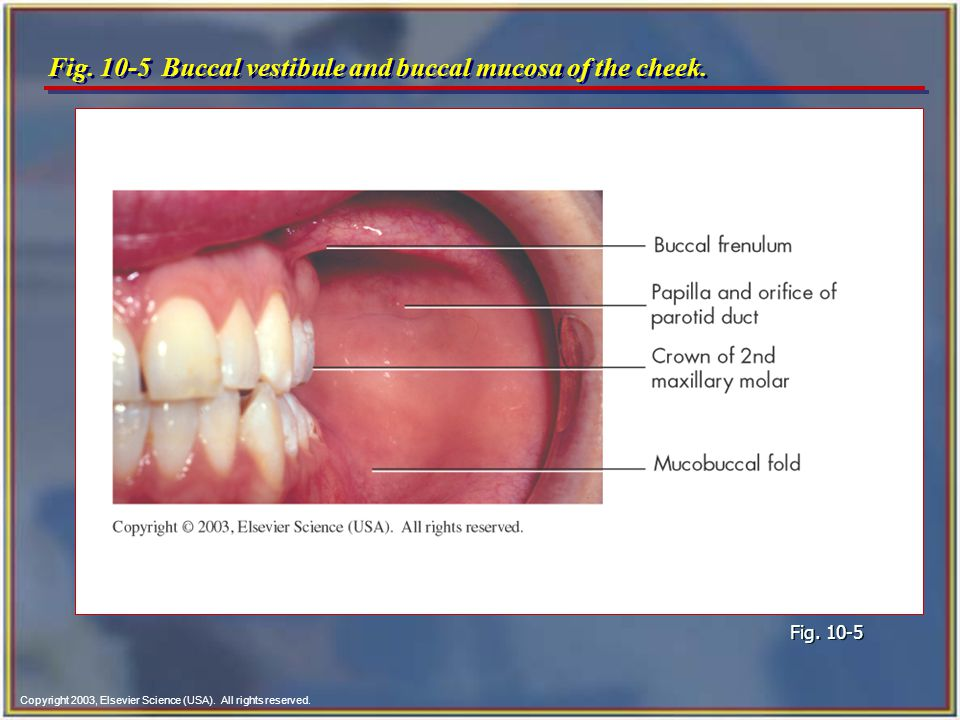 Fig. 10-5 Buccal vestibule and buccal mucosa of the cheek.