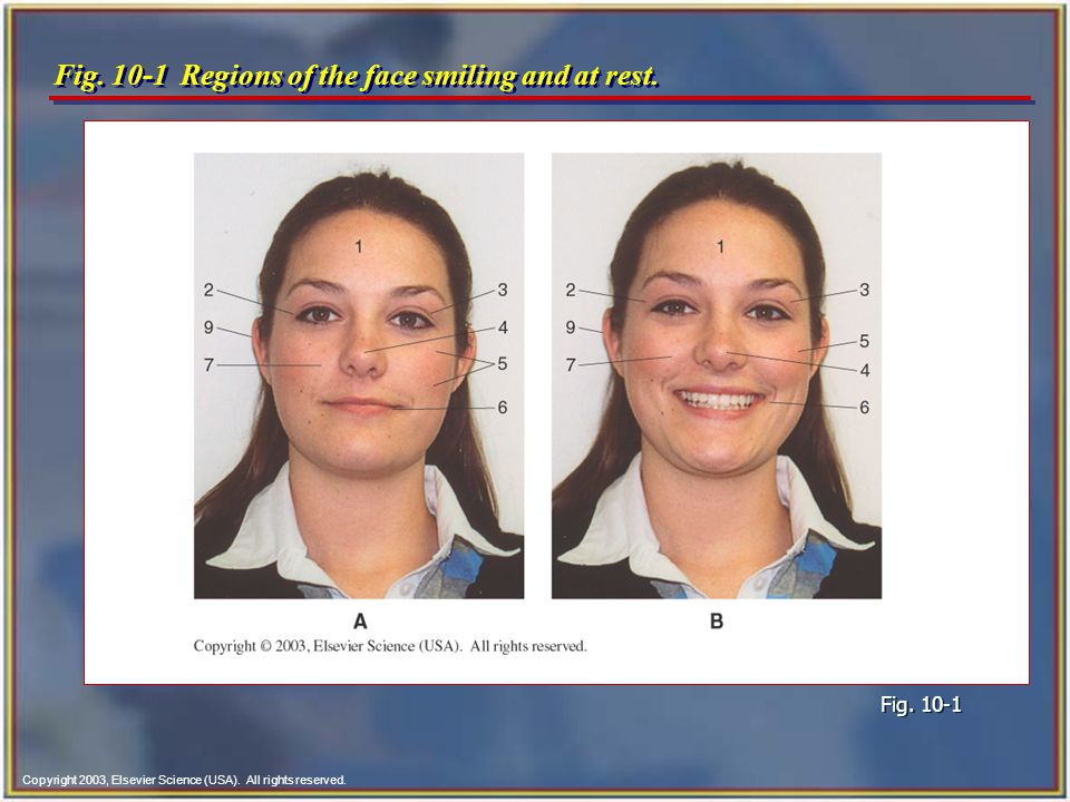 Fig. 10-1 Regions of the face smiling and at rest.