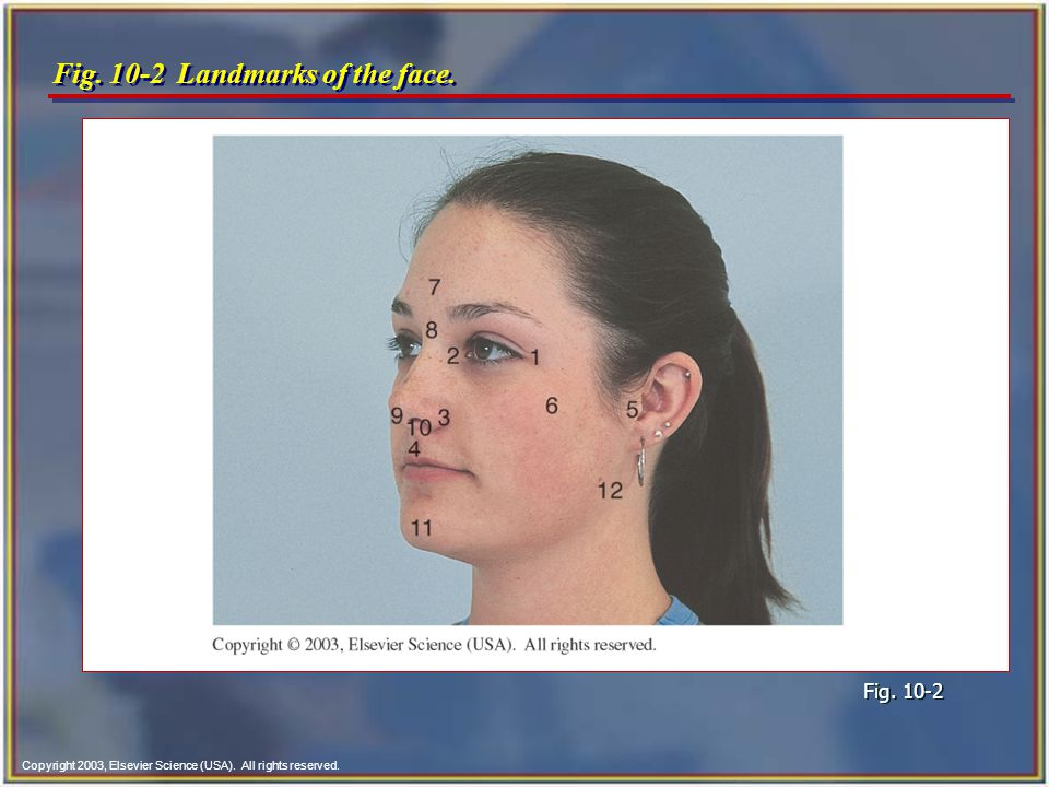 Fig. 10-2 Landmarks of the face.