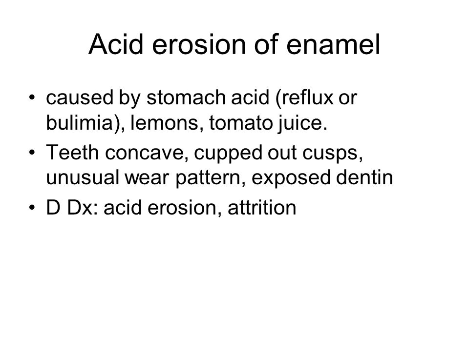 Acid erosion of enamel caused by stomach acid (reflux or bulimia), lemons, tomato juice.